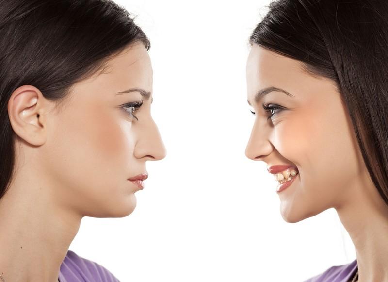 A rinoplastia pode corrigir imperfeições no nariz e o bom resultado afetará positivamente a autoestima / GB Imagem